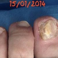 Treatment of Onychomycosis
